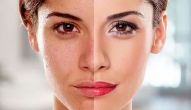 Kivi Yüz Maskesi İle Cilt Beyazlatma Nasıl Yapılır?